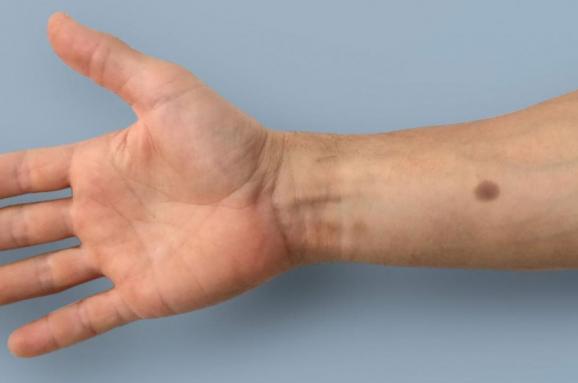 Татуювання, яке допомагає виявити рак на ранніх стадіях