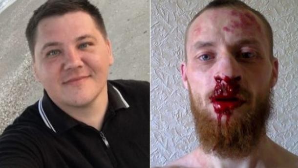 В Запорожье и в Кривом Роге избили местных активистов. Нацполиция говорит, что дело не всегда в политике