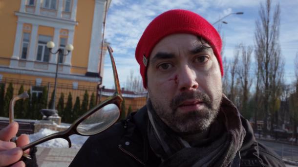 В МИД прокомментировали избиение канадского журналиста в Киеве