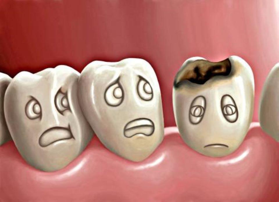 зуб з карієсом
